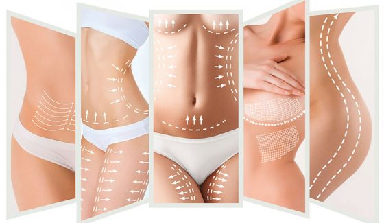 Laser Lipo (RF Cellulite Treatment)